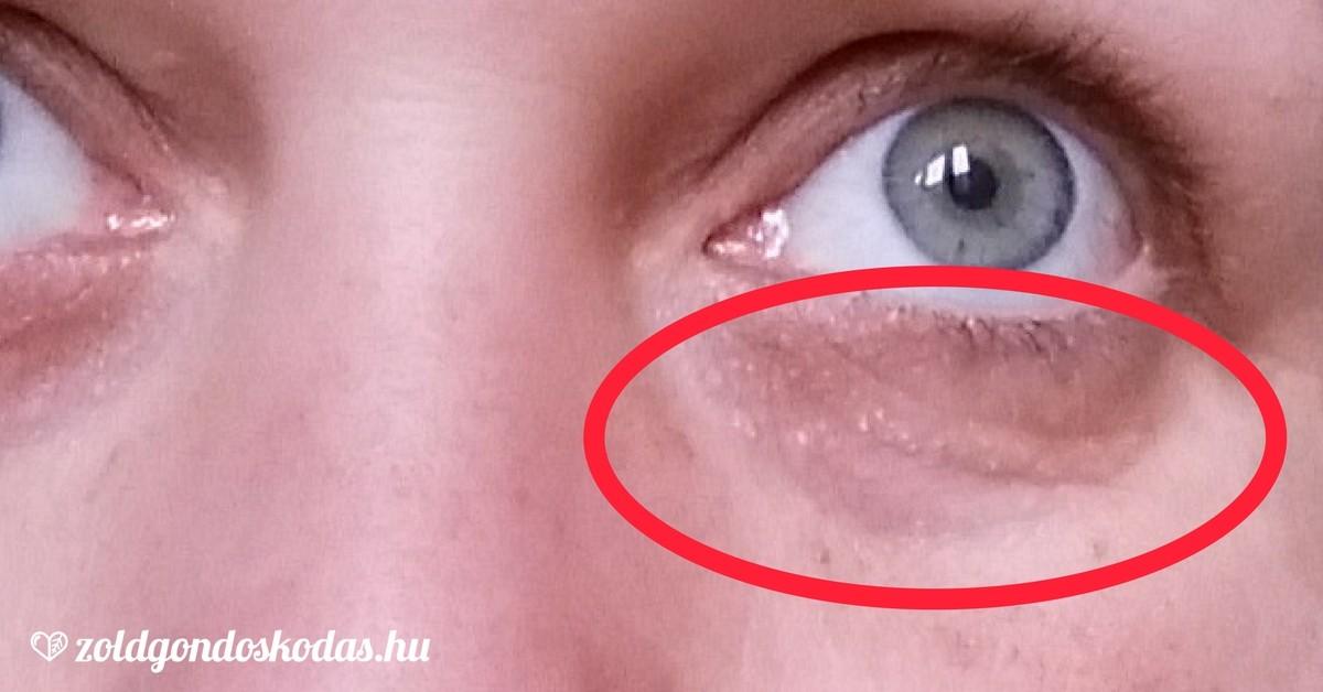 vörös foltok az arcon a szem közelében