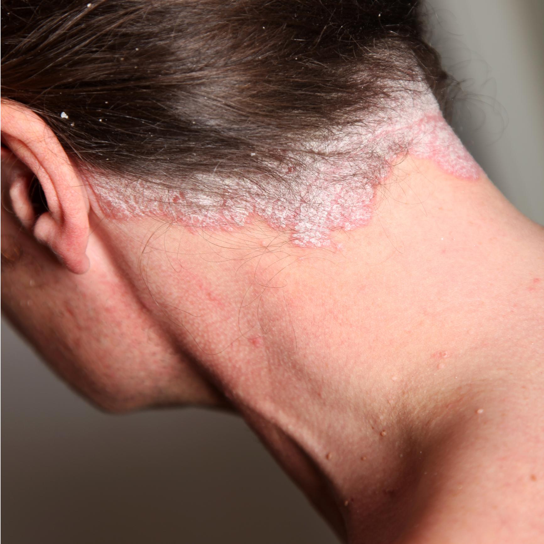 hogyan lehet eltávolítani egy vörös foltot az arcán pikkelysömör kezelése piócákkal fotók előtt és után