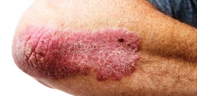 epiphyllum a pikkelysmr kezelsben vörös viszkető foltok a lábán