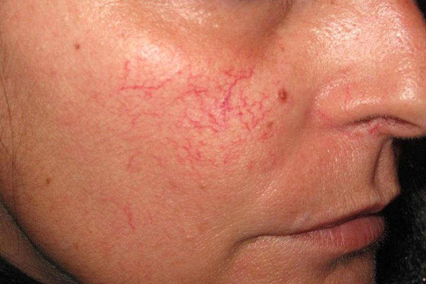 hogyan lehet gyorsan eltávolítani a vörös foltokat az arcon otthon