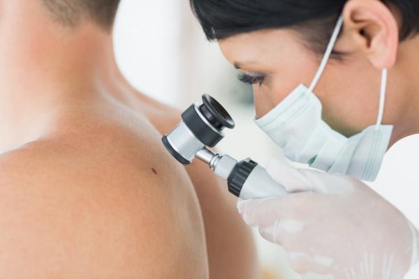 pikkelysömör és reuma kezelése milyen pikkelysömörböl s hogyan kell kezelni