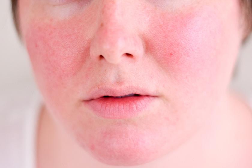 tej vörös foltokból az arcon