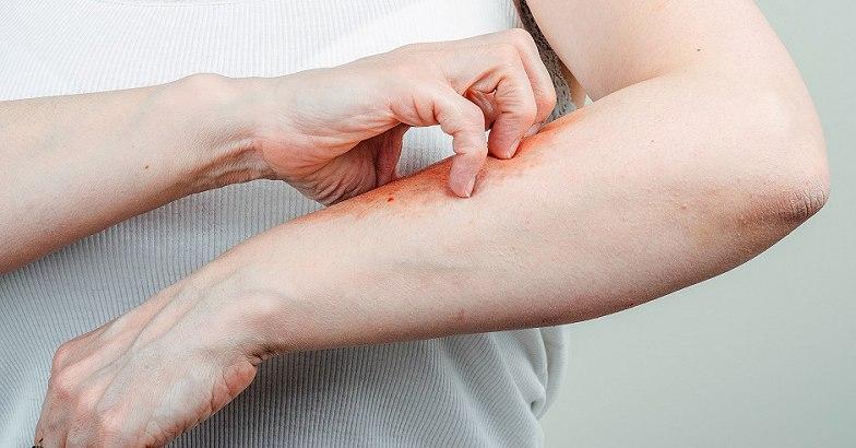 vörös foltok a lábakon sérülések után egyszerű kénsavas kenőcs pikkelysömör vélemények