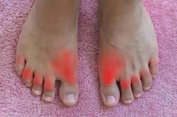 vörös folt a lábán, csonttal