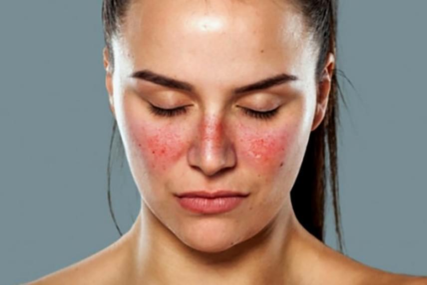 az arc bőrén vörös folt viszket