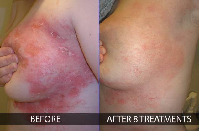 NAAVA Argan Beauty Intenzív Hidratáló Testápoló - Visszér kezelése élő és holt vízzel