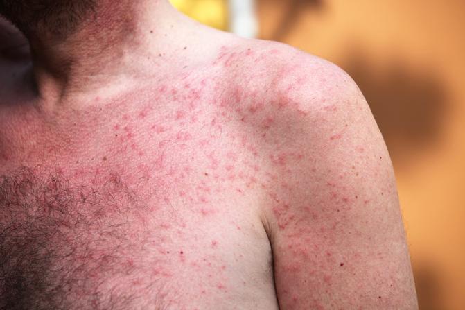 amelyből vörös foltok jelennek meg a karokon és a lábakon krém, amely eltávolítja az arc vörös foltjait
