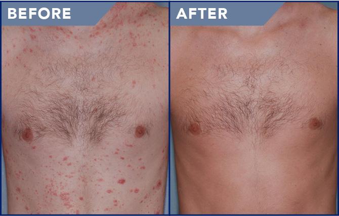 vörös foltok és irritáció az arcon kalcium-klorid a pikkelysmr kezelsben