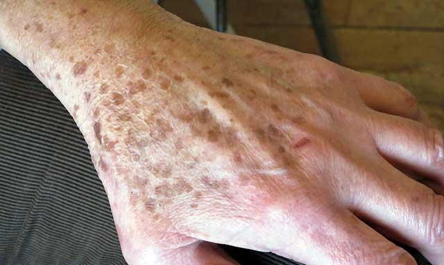 pikkelysömör etiológiája patogenezis kezelése mi okozza a kezeken a vörös foltokat