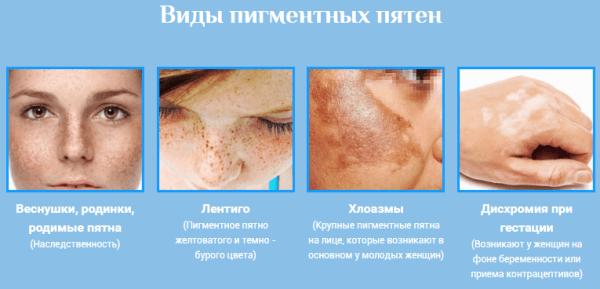 Értágulat megszüntetése arcon | Erzsébet Fürdő Gyógyászati És Szűrőközpont