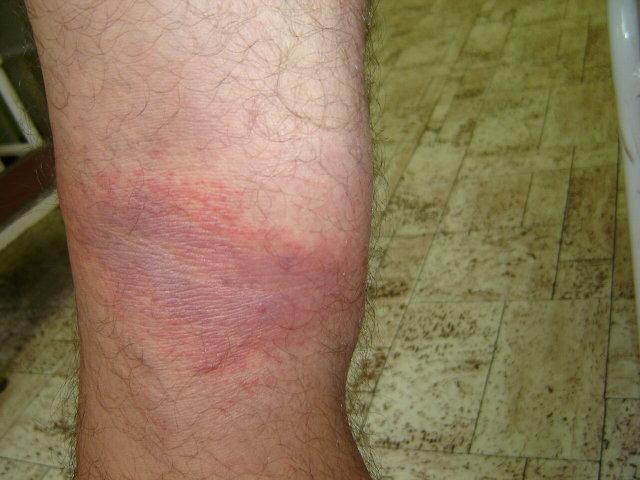 piros folt a lábszár borján fáj