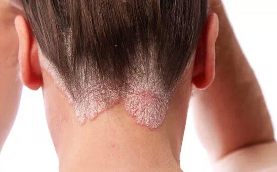 hogyan lehet a könyökön gyógyítani a pikkelysömör otthon vörös folt jelent meg a nyakon és lehámlik