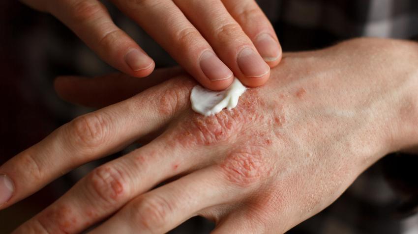 pikkelysömör kezelése belemnitekkel vörös hólyagos foltokkal borított kezek