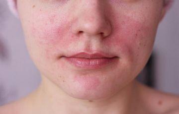 A bőrön lévő foltok hámlóak, de nem viszketnek: okok és kezelés - Klinikák