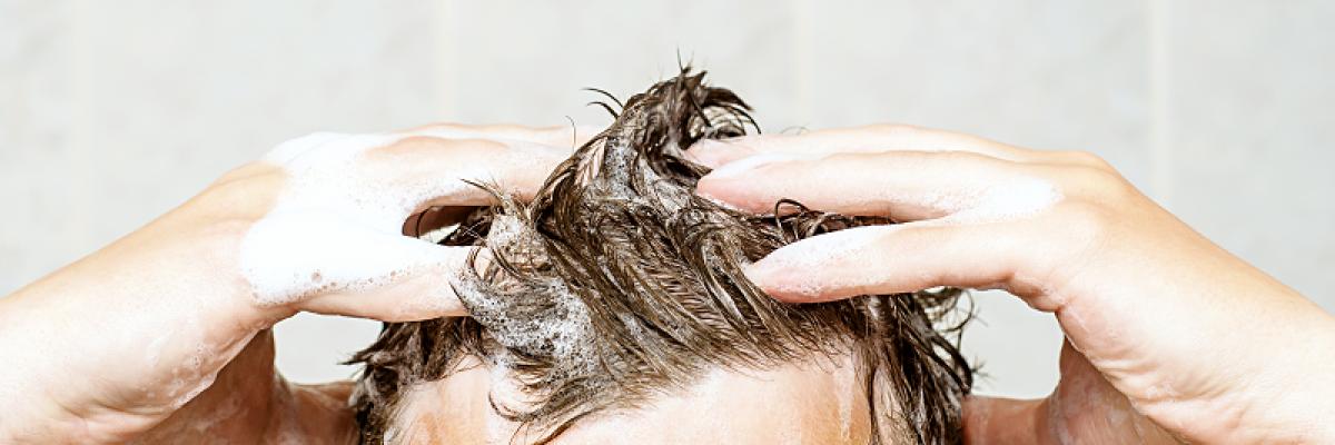 hogyan és hogyan lehet otthon gyógyítani a pikkelysömör fejét