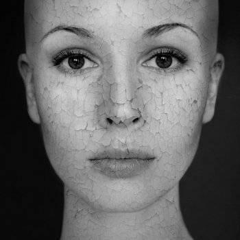 hogyan lehet eltávolítani a száraz vörös foltokat az arcon