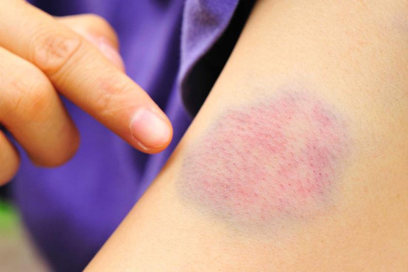 A bőrön lévő foltok hámlóak, de nem viszketnek: okok és kezelés - Tünetek