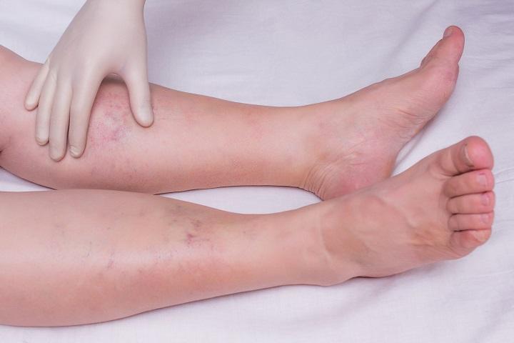 fájdalmas vörös foltok a lábak bőrén