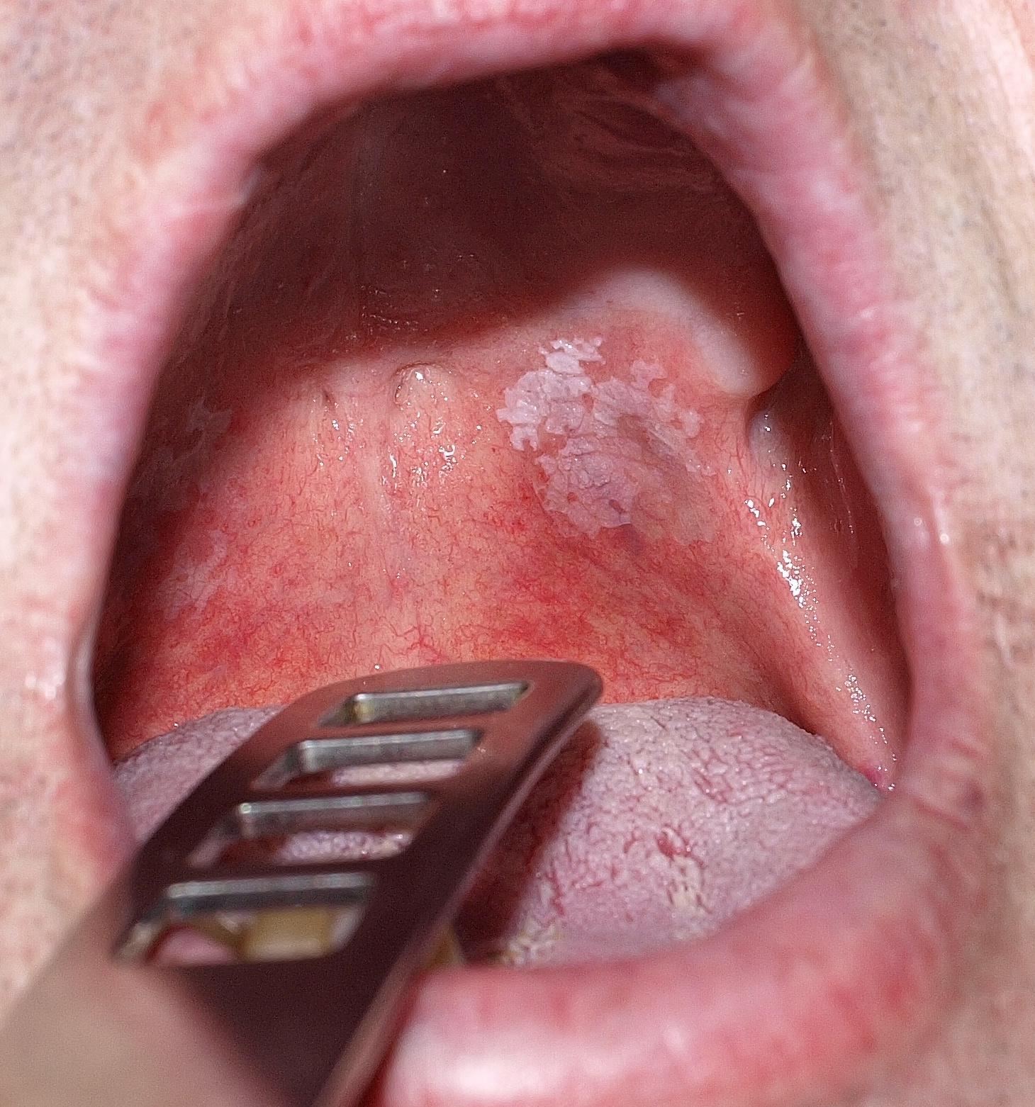 a száj közelében vörös folt pelyhesedik