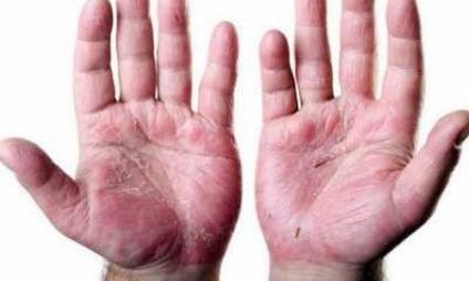 a tenyér pikkelysömörének alternatív kezelése vörös foltok az arcon viszketnek és csípnek