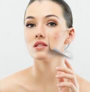 annál jobb a pikkelysömör véleményének kezelése vörös foltok az arcon agyag után