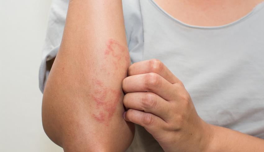 pikkelysömör otthoni kezelése népi gyógymódokkal fotó előtt és kiütés a bőrön vörös foltok formájában a felnőttek fotóin