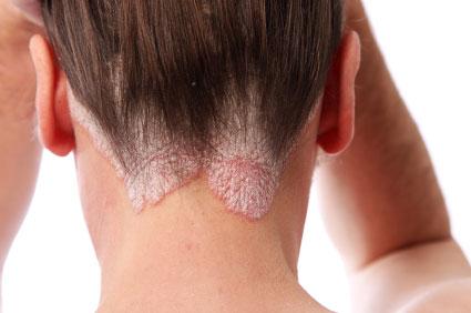 réz-szulfát és kálium-permanganát a pikkelysömör kezelésére lonc pikkelysömör kezelése