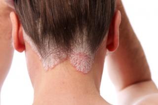 milyen gyógymódokkal gyógyítható meg a pikkelysömör tartósan vörös foltok a bőrön