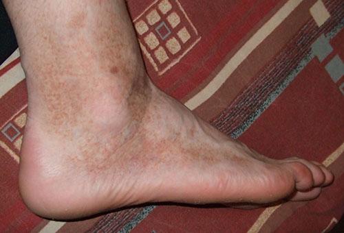 Miért duzzadt a láb és a vörös - Allergia November