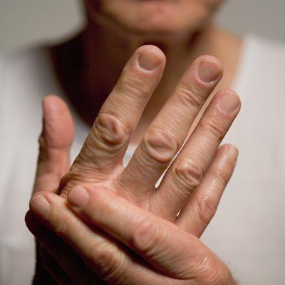 arthropathic psoriasis kezelése wundehil kenőcs pikkelysömörről vélemények