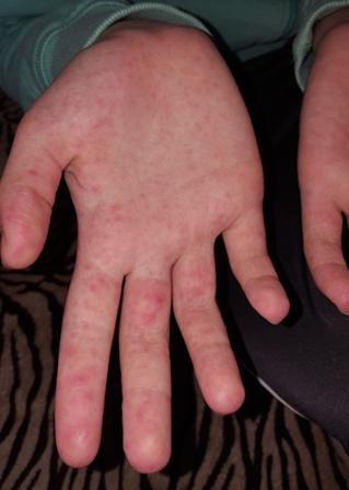 piros foltok a kezén viszket fénykép hogyan kell kezelni