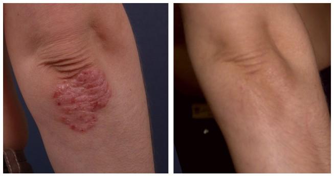 pikkelysömör kezelése kartalin véleményekkel piros pontok a lábakon foltok