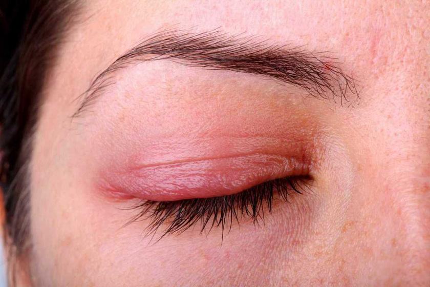 a felső szemhéjon a vörös folt hámlik vörös foltok, mint a láb zúzódásai