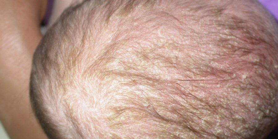 fejbőr vörös foltok pikkelyesek