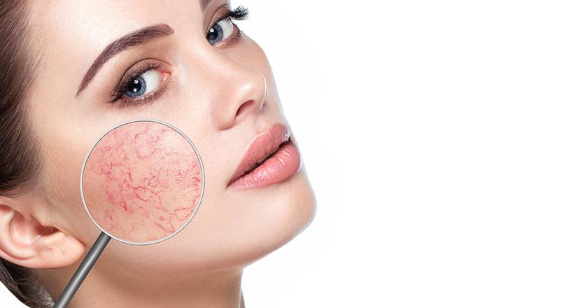 hogyan lehet eltávolítani a vörös foltokat az arcon a férfiaknál