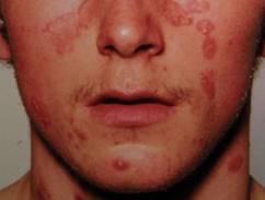 pikkelysömör az arcon fotó okai s kezelse vörös foltok a bőrön nem zavarják