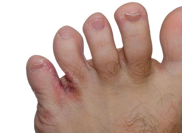 a lábujjak viszketnek és vörös foltok jelennek meg, mint kezelni