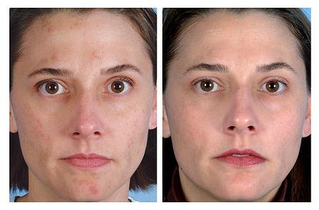 14 évig tartó pikkelysömör gyógyszerei növekvő vörös foltok az arcon