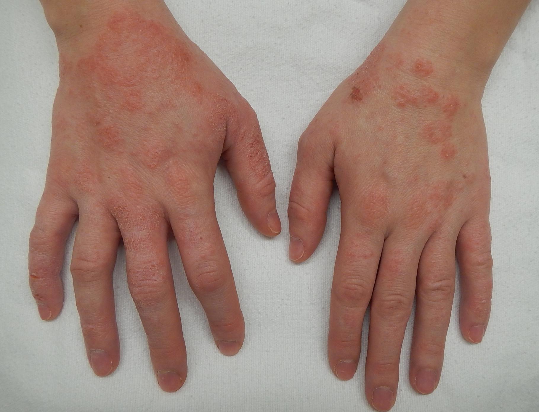 pikkelysömör a kezen hogyan kell kezelni a bőrön lévő vörös foltok nyomással eltűnnek