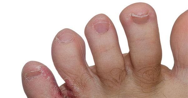 vörös foltok az ujjak és a lábujjak között