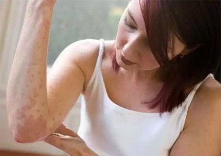hogyan lehet megszabadulni a pikkelysömör súlyosbodásától vörös száraz foltok a szemhéjon és az arcon