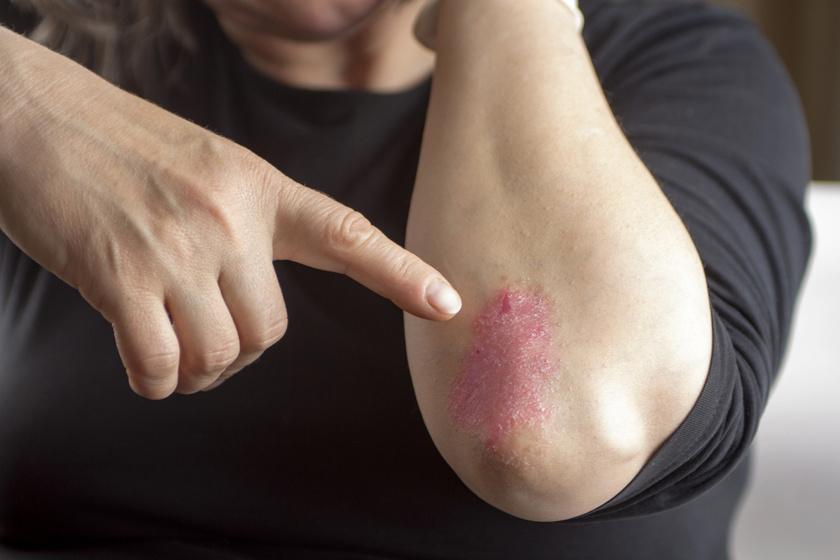 a pikkelysömör kezelésének természetes mdja malacok piros foltok, hogyan kell kezelni