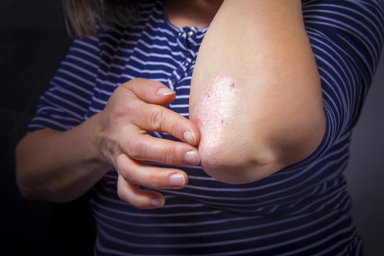 Sokak betegsége, ami nemcsak esztétikai probléma. Rosacea és pikkelysömör (psoriasis)