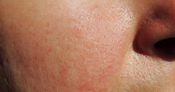 vörös foltok az arcon nap után pikkelysmr az egsz testben okai s kezelse