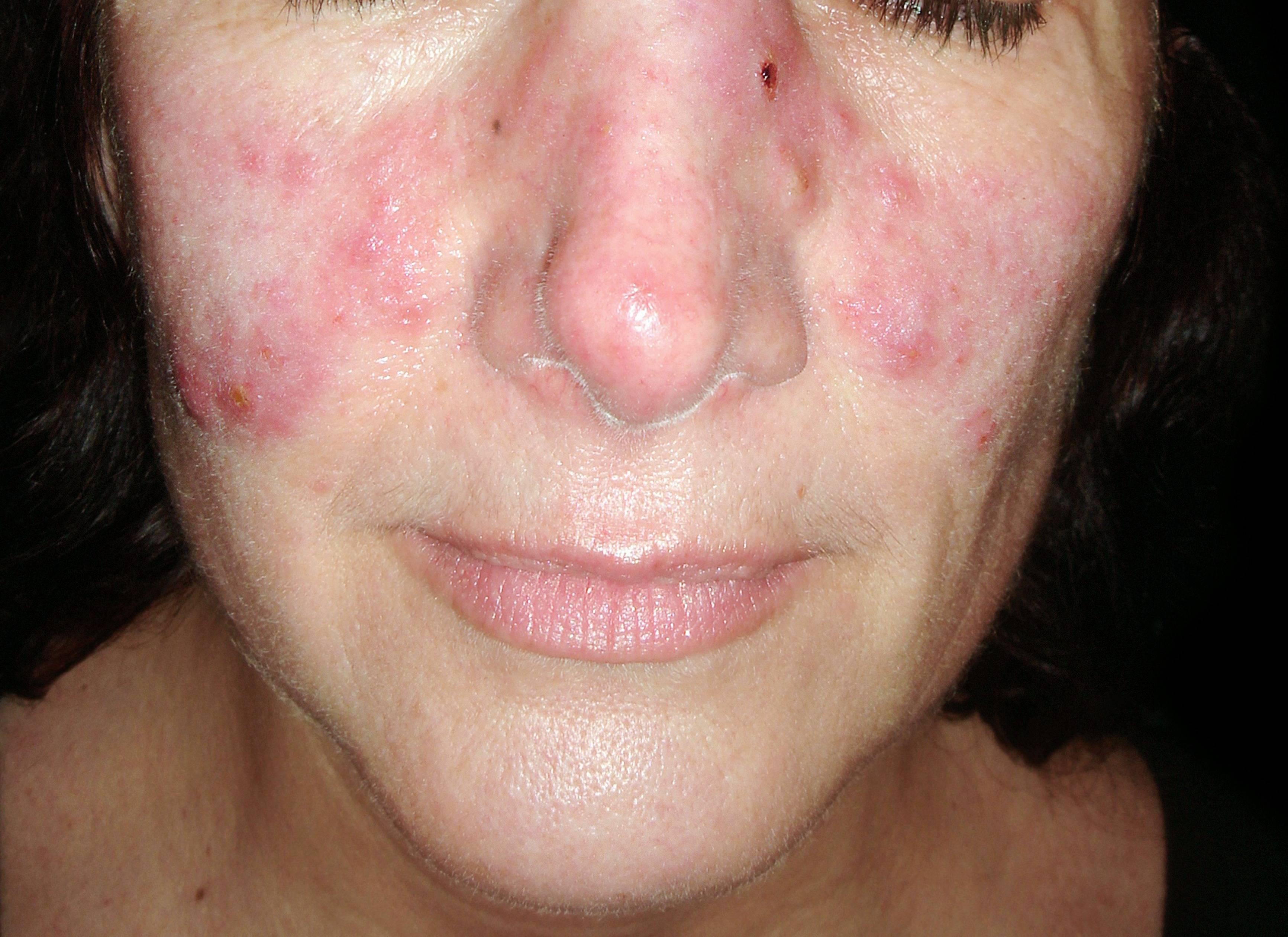 vörös foltok az arcon a szem közelében pikkelysömör az arcon gyógynövényes kezelés