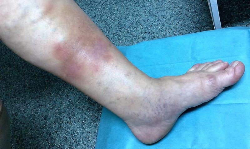 piros foltok a lábakon okok és kezelés fotó