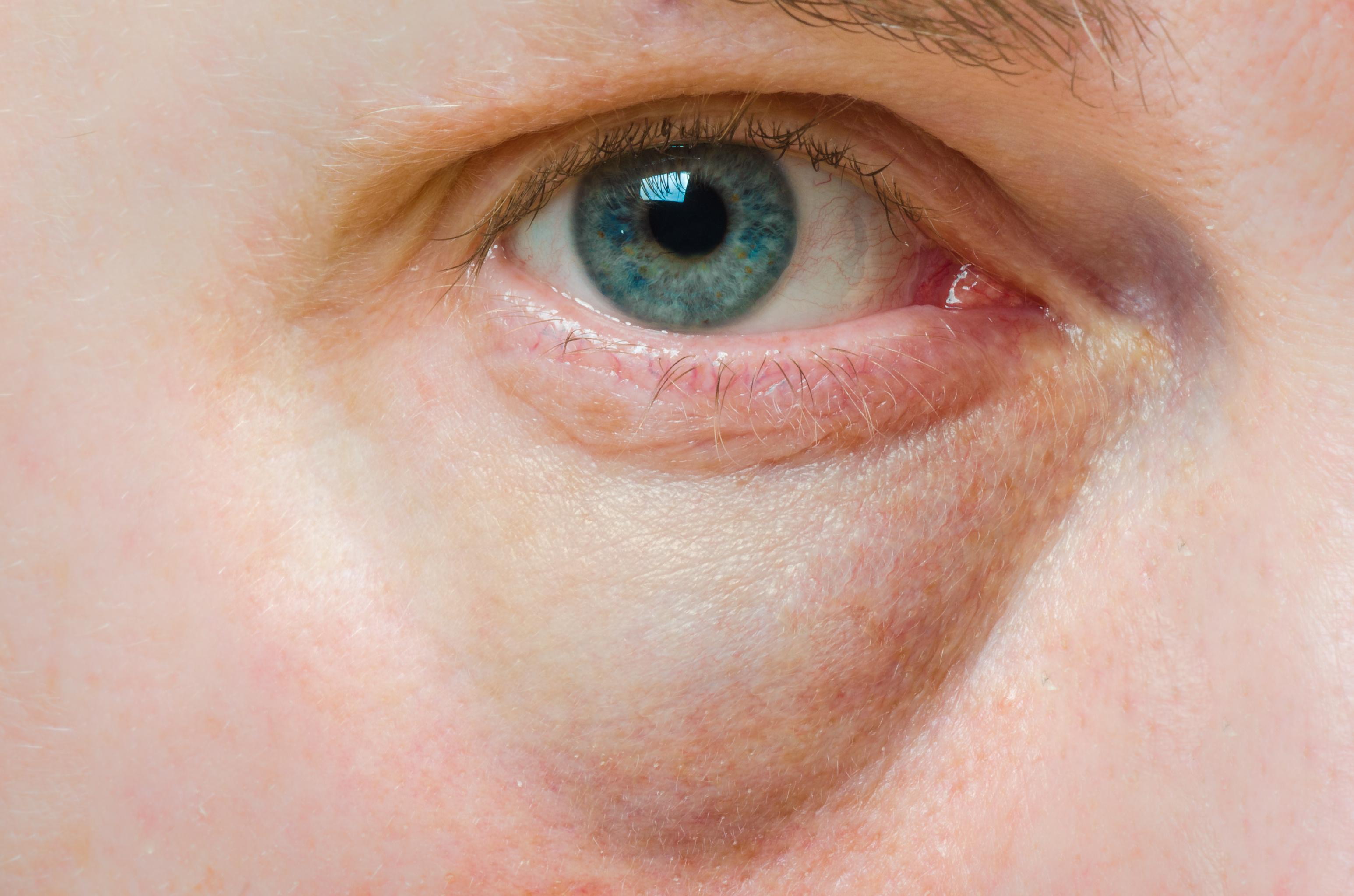 8 tipp a szem alatti sötét karikák ellen - HáziPatika