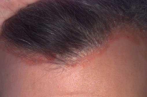 pikkelyes fejbőr kezelés
