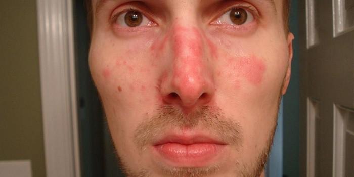 arca hideg foltokkal borított pikkelysömör az arcon fotó okai s kezelse
