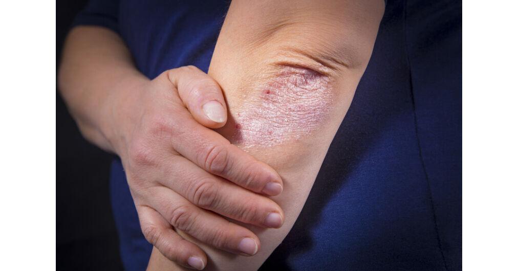 pikkelysömör kezelése a természetes út könyv hogyan lehet eltávolítani a vörös foltokat az arcon a férfiaknál